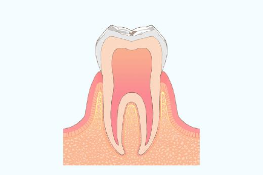 エナメル質内のむし歯(治療の必要はなし)