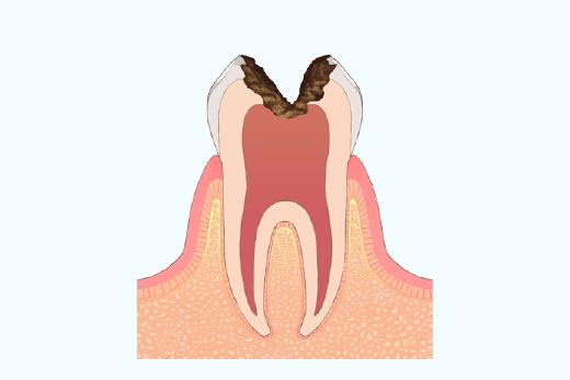 歯髄(神経)まで到達したむし歯
